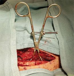 Pointed Fracture Reduction Clamps – Medium