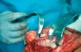Collateral Ligament Retractor