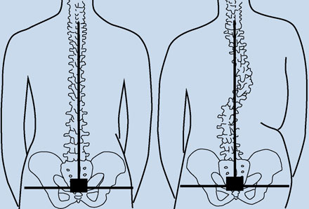 Bernard Spinal Alignment Block