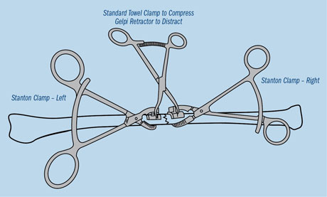 Stanton Articulating Small Bone Clamps